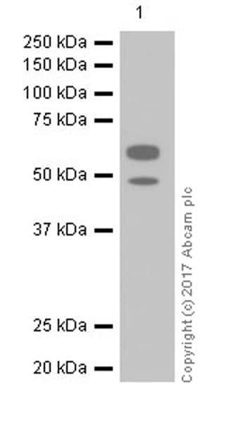 Western blot - Anti-AHSG antibody [EPR17839-163] (ab187051)