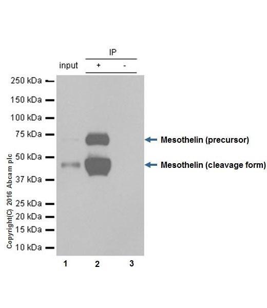 Immunoprecipitation - Anti-Mesothelin antibody [EPR17823-52] (ab187063)