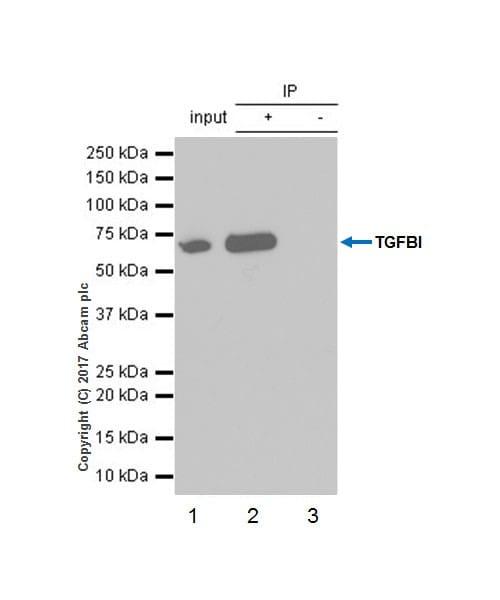 Immunoprecipitation - Anti-TGFBI antibody [EPR17990-13] (ab187085)