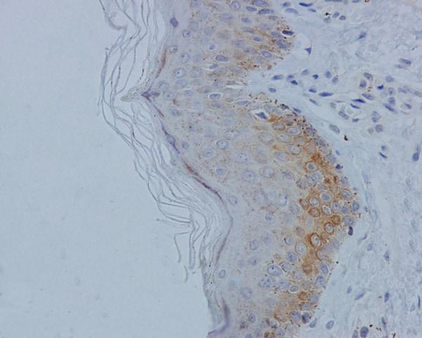 Immunohistochemistry (Formalin/PFA-fixed paraffin-embedded sections) - Anti-MLKL (phospho S358) antibody [EPR9514] (ab187091)