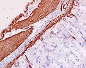 Immunohistochemistry (Formalin/PFA-fixed paraffin-embedded sections) - Anti-MYL9 antibody [EPR13013(2)(B)] (ab187152)