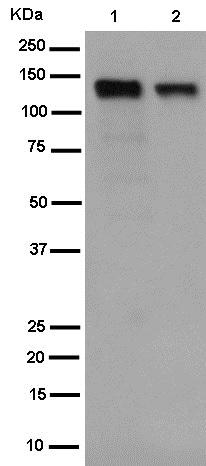 Western blot - Anti-USP25 antibody [EPR15019] (ab187156)