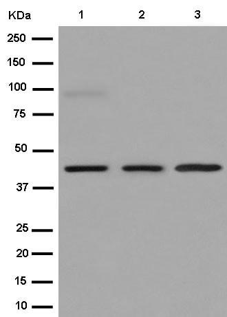 Western blot - Anti-CD1E antibody [EPR15746(B)] (ab187157)