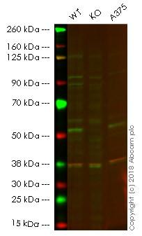 Western blot - Anti-Retinoic Acid Receptor gamma antibody [EPR2020(N)] - N-terminal (ab187159)