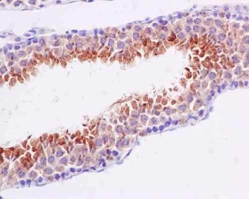 Immunohistochemistry (Formalin/PFA-fixed paraffin-embedded sections) - Anti-BORIS antibody [EP12204] (ab187163)