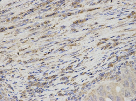 Immunohistochemistry (Formalin/PFA-fixed paraffin-embedded sections) - Anti-Thromboxane synthase antibody (ab187176)