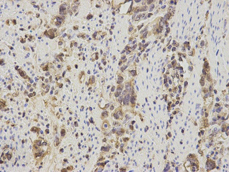 Immunohistochemistry (Formalin/PFA-fixed paraffin-embedded sections) - Anti-S100A11 antibody (ab187180)