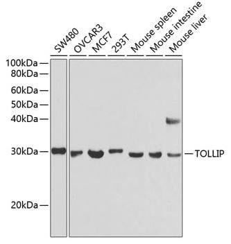 Western blot - Anti-Tollip antibody (ab187198)