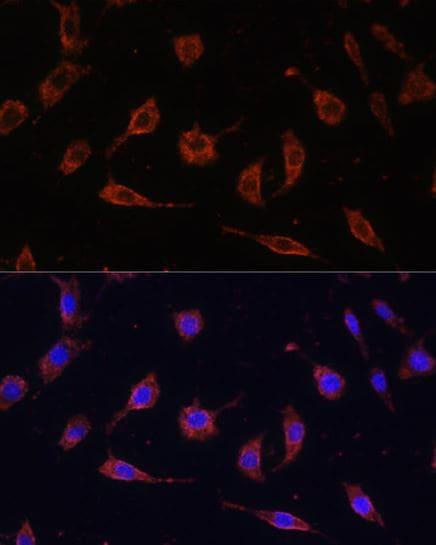 Immunocytochemistry/ Immunofluorescence - Anti-Tollip antibody (ab187198)