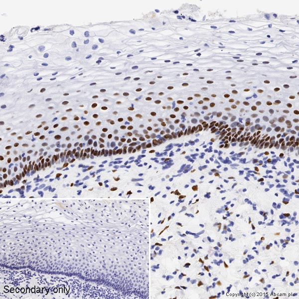 Immunohistochemistry (Formalin/PFA-fixed paraffin-embedded sections) - Anti-Estrogen Receptor alpha antibody [SP1] - BSA and Azide free (ab187260)