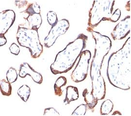 Immunohistochemistry (Formalin/PFA-fixed paraffin-embedded sections) - Anti-hCG beta antibody [HCGb/54] (ab187285)