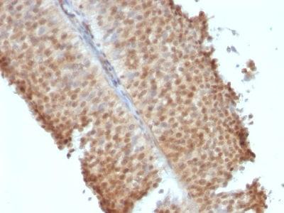 Immunohistochemistry (Formalin/PFA-fixed paraffin-embedded sections) - Anti-Estrogen Receptor beta 1 antibody [ERb455] - C-terminal (ab187291)