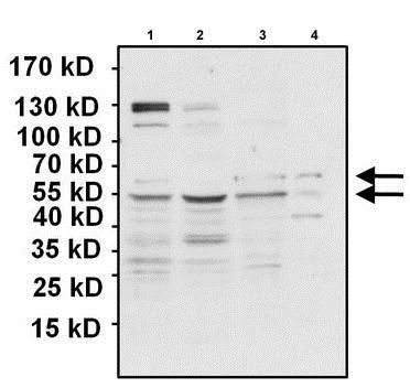 Western blot - Anti-PAX7 antibody (ab187339)