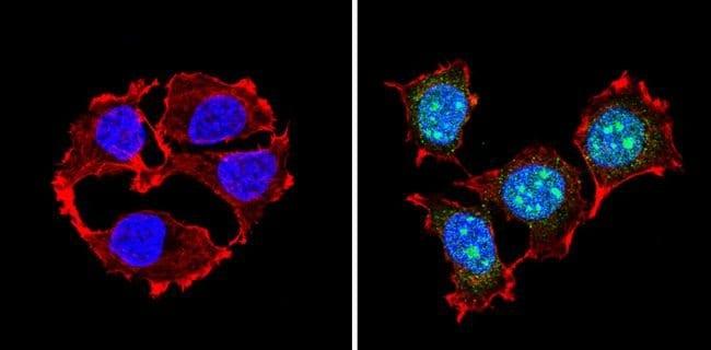 Immunocytochemistry - Anti-PAX7 antibody (ab187339)