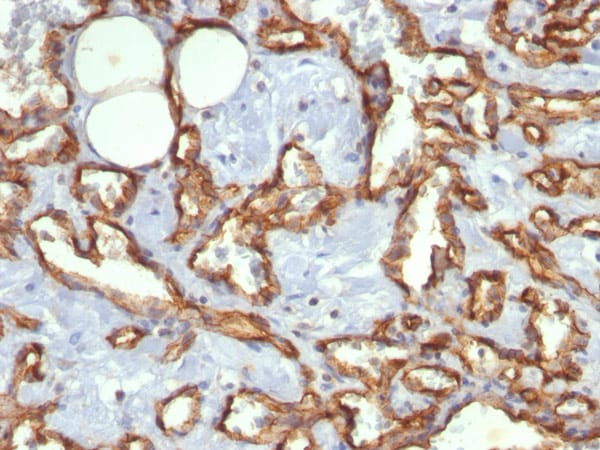 Immunohistochemistry (Formalin/PFA-fixed paraffin-embedded sections) - Anti-CD31 antibody [C31.3] (ab187377)