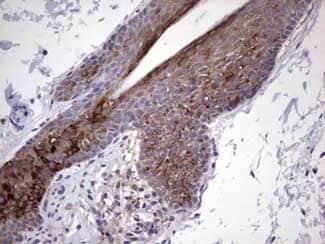Immunohistochemistry (Formalin/PFA-fixed paraffin-embedded sections) - Anti-Gli2 antibody [OTI1F9] (ab187386)