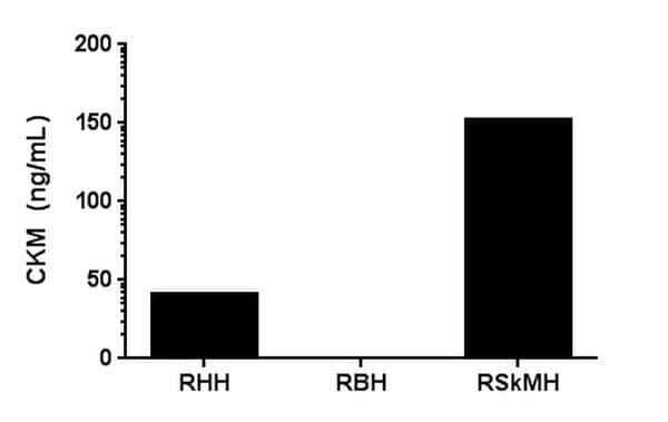 Tissue specificity of CKM in rat tissue extracts, Rat Heart (RHH), brain (RBH) and Skeletal Muscle (RSkMH).