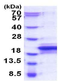 SDS-PAGE - Recombinant Human MOSPD1 protein (ab187410)
