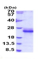 SDS-PAGE - Recombinant Mouse IL-33 protein (ab187455)