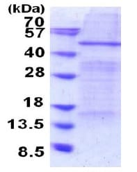 SDS-PAGE - Recombinant Human Elp4 protein (denatured) (ab187472)