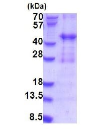 SDS-PAGE - Recombinant Human PIH1D2 protein (ab187487)