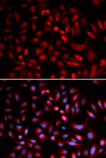 Immunocytochemistry/ Immunofluorescence - Anti-PKA beta (catalytic subunit) antibody (ab187515)