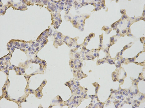 Immunohistochemistry (Formalin/PFA-fixed paraffin-embedded sections) - Anti-Neutrophil Bactericidal Protein BP30 antibody (ab187519)