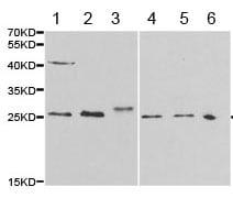 Western blot - Anti-Major Basic Protein antibody (ab187523)
