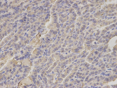 Immunohistochemistry (Formalin/PFA-fixed paraffin-embedded sections) - Anti-HIF1AN/FIH-1 antibody (ab187524)