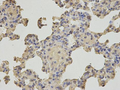 Immunohistochemistry (Formalin/PFA-fixed paraffin-embedded sections) - Anti-MTH1 antibody (ab187531)