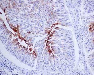 Immunohistochemistry (Formalin/PFA-fixed paraffin-embedded sections) - Anti-Uroplakin III antibody [EPR14420] (ab187646)
