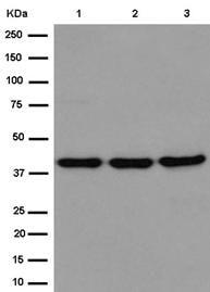 Western blot - Anti-Septin 2 antibody [EPR12122] (ab187654)