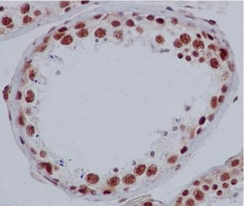 Immunohistochemistry (Formalin/PFA-fixed paraffin-embedded sections) - Anti-ACF1 / BAZ1A antibody [EPR15826] - C-terminal (ab187670)