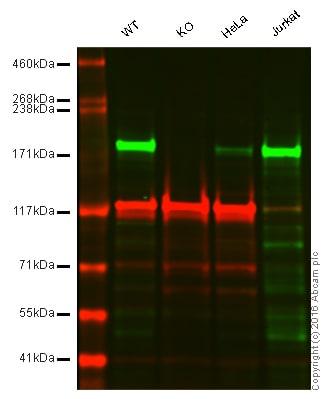 Western blot - Anti-ACF1 / BAZ1A antibody [EPR15826] - C-terminal (ab187670)