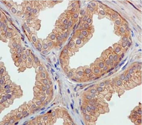 Immunohistochemistry (Formalin/PFA-fixed paraffin-embedded sections) - Anti-ATG16L1 antibody [EPR15638] - N-terminal (ab187671)