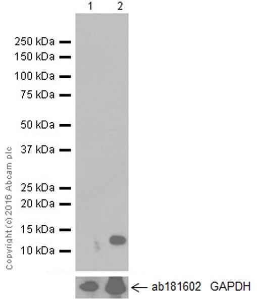 Western blot - Anti-CCL4/MIP-1 beta antibody [EP521Y] - BSA and Azide free (ab187674)