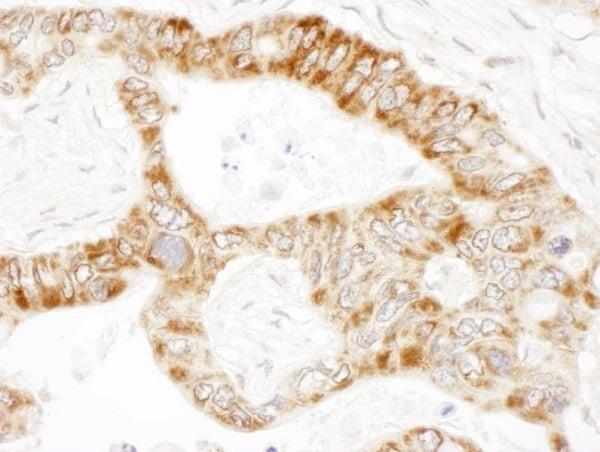 Immunohistochemistry (Formalin/PFA-fixed paraffin-embedded sections) - Anti-PCCA antibody - C-terminal (ab187686)