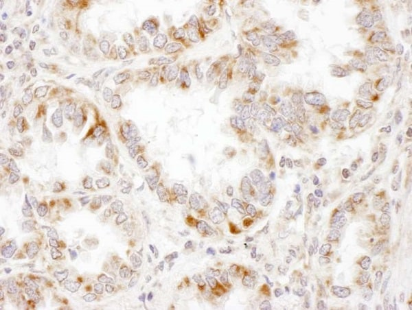 Immunohistochemistry (Formalin/PFA-fixed paraffin-embedded sections) - Anti-PCCA antibody - C-terminal (ab187686)