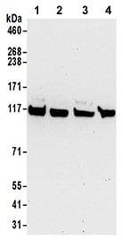 Western blot - Anti-KIF5B antibody (ab187693)
