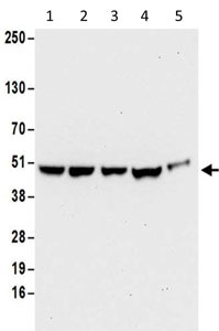 Western blot - Anti-RRAGC antibody (ab187705)