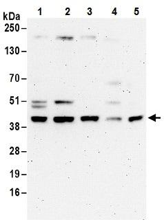 Western blot - Anti-ACAT2 antibody (ab187712)