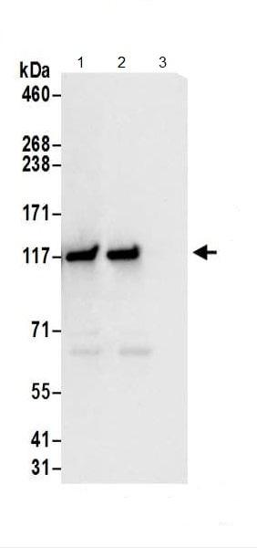 Immunoprecipitation - Anti-GART antibody (ab187716)