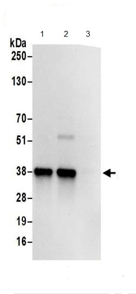 Immunoprecipitation - Anti-RABGGTB antibody (ab187717)