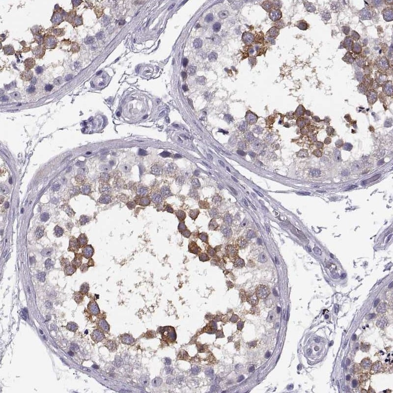 Immunohistochemistry (Formalin/PFA-fixed paraffin-embedded sections) - Anti-TTC21A/STI2 antibody (ab187748)