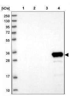 Western blot - Anti-GLYATL1 antibody (ab187859)