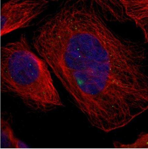 Immunocytochemistry/ Immunofluorescence - Anti-GCM1 antibody - C-terminal (ab187860)