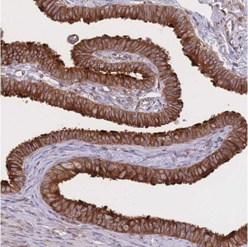Immunohistochemistry (Formalin/PFA-fixed paraffin-embedded sections) - Anti-EXOSC8 antibody (ab187905)