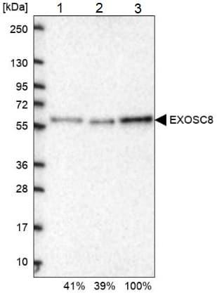 Western blot - Anti-EXOSC8 antibody (ab187905)