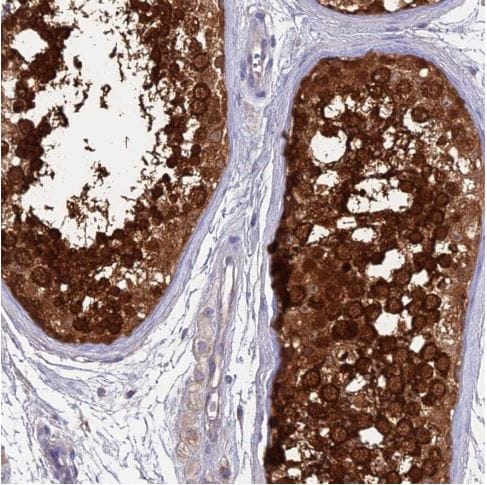 Immunohistochemistry (Formalin/PFA-fixed paraffin-embedded sections) - Anti-LZTFL1 antibody (ab187918)