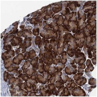 Immunohistochemistry (Formalin/PFA-fixed paraffin-embedded sections) - Anti-SF20 antibody (ab187919)